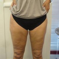 herstel na liposuctie benen